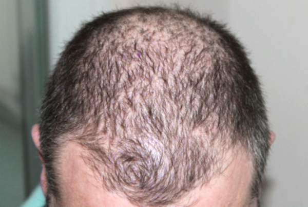 Inscobee said Thursday that it has acquired the U.S. patent for its bio-implant technology that promotes hair growth.