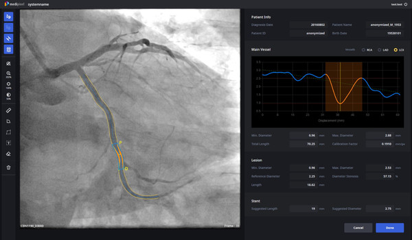 A single screen of Medipixel XA shows cardiovascular contour and lesion site as well as recommended stent types. (Credit: Medipixel).